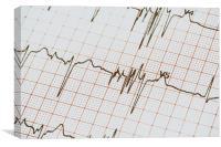 Extrasystoles On Electrocardiogram, Canvas Print