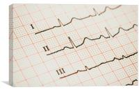 Sinus Heart Rhythm On Electrocardiogram Paper, Canvas Print